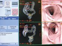 写真のような腸内部の立体画像を作成する「CTコロノグラフィー」による大腸がんドック(自由診療、2万5000円)も実施