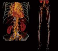 マルチスライスCT(80列/160スライスCT)による、心臓、頭頸部動脈、胸腹部大動脈、下肢動脈の検査結果