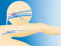 レーザーを大伏在静脈と大腿静脈の合流部まで導き、下方に牽引、レーザーを照射(イメージ)