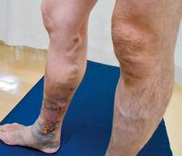 下肢静脈瘤により右下腿のうっ血性皮膚炎を来している状態