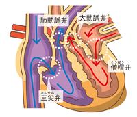 心臓内で血液をスムーズに流れさせ、かつ、逆流を起こさないように働く4つの「弁」
