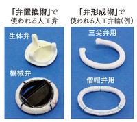 心臓弁膜症患者の外科的治療で使われる人工弁と人工弁輪